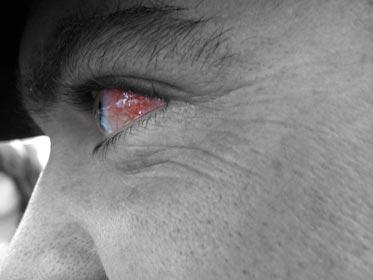 ojos dilatados por consumo de marihuana